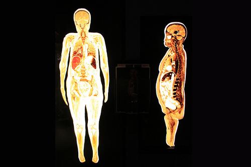 Human Body Slices