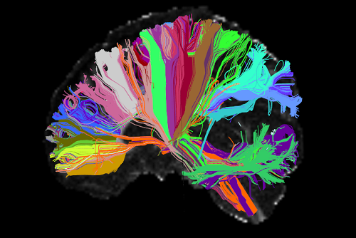 High Angular Resolution Diffusion Image of Human Brain