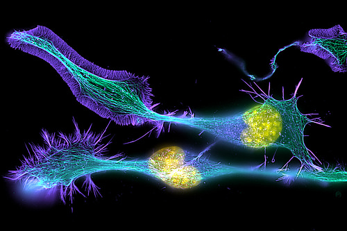 Developing Nerve Cells