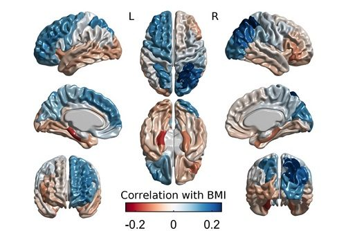 Brain Maps of Associations Between BMI and Cortical Thickness, figure from Vainik et al