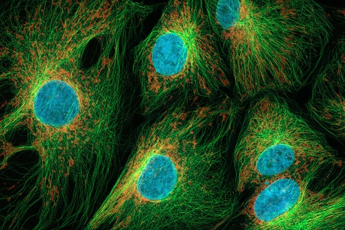 African Green Monkey Kidney Cells