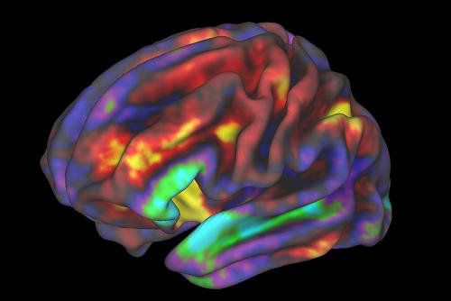 fMRI Brain Image